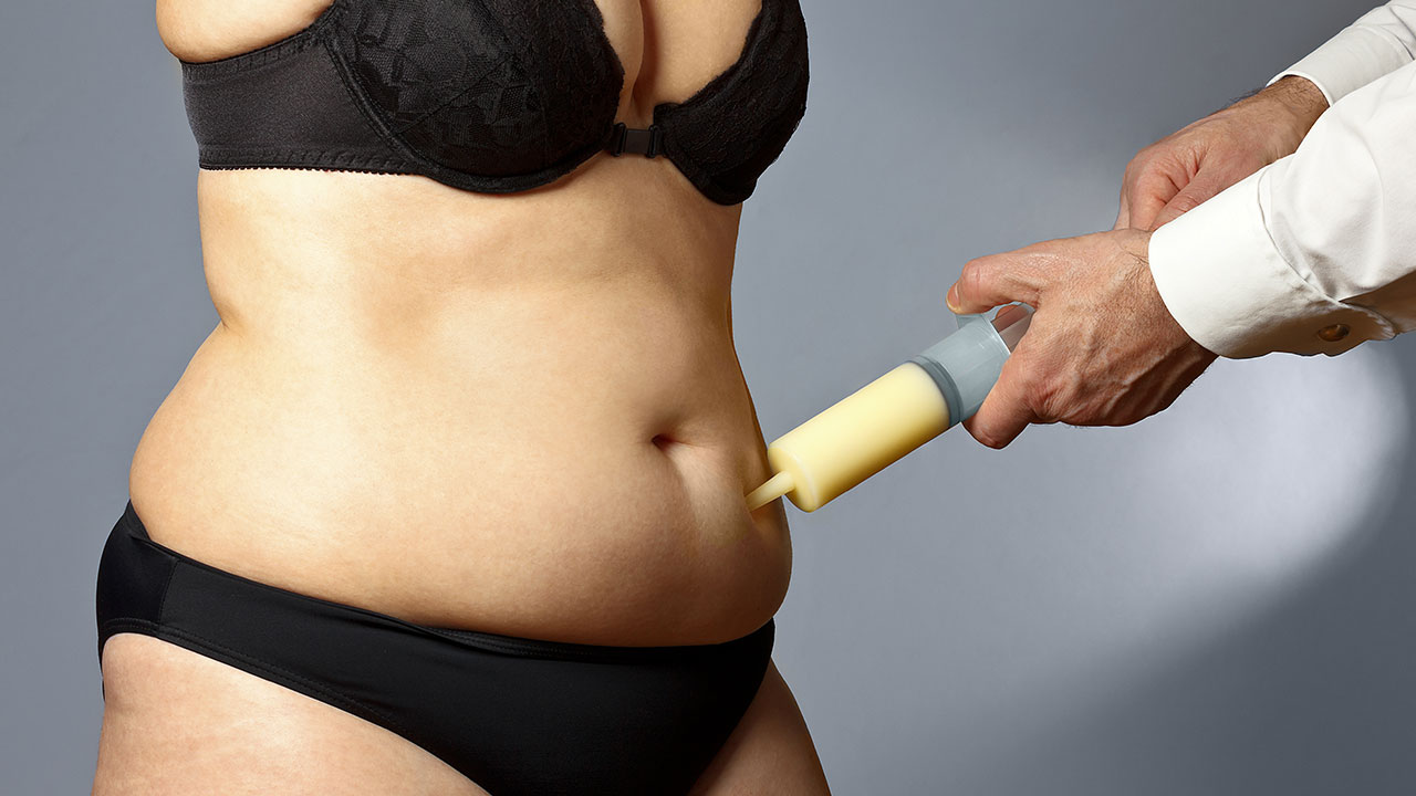 Best Candidates for a Tummy Tuck Surgery